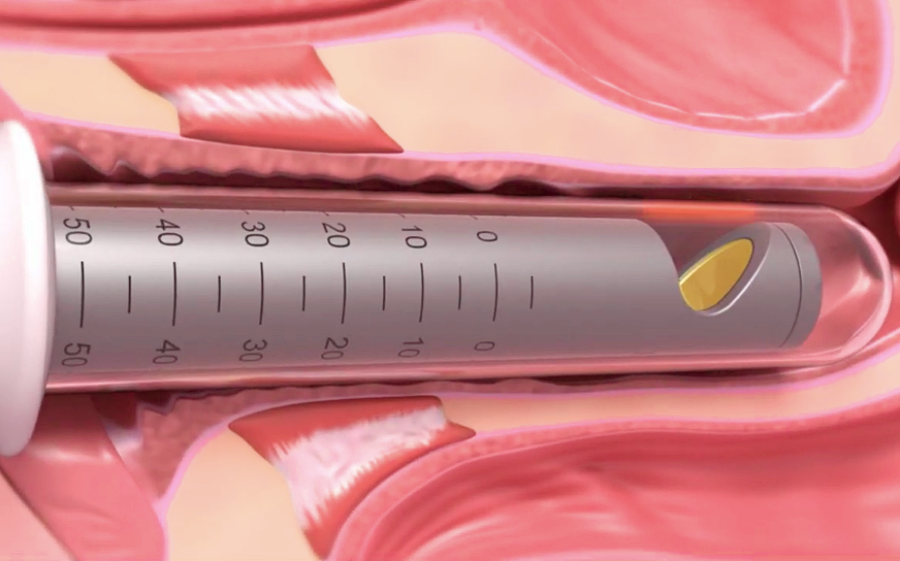 Vaginal Vulval Rejuvenation
